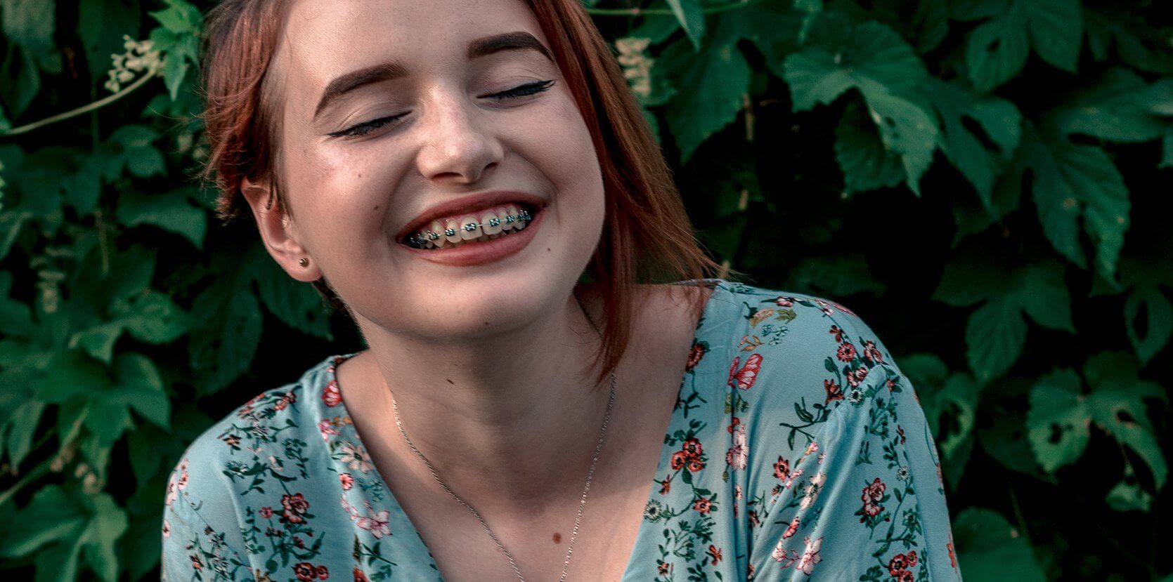 How you can benefit from Dental Braces and Bridges