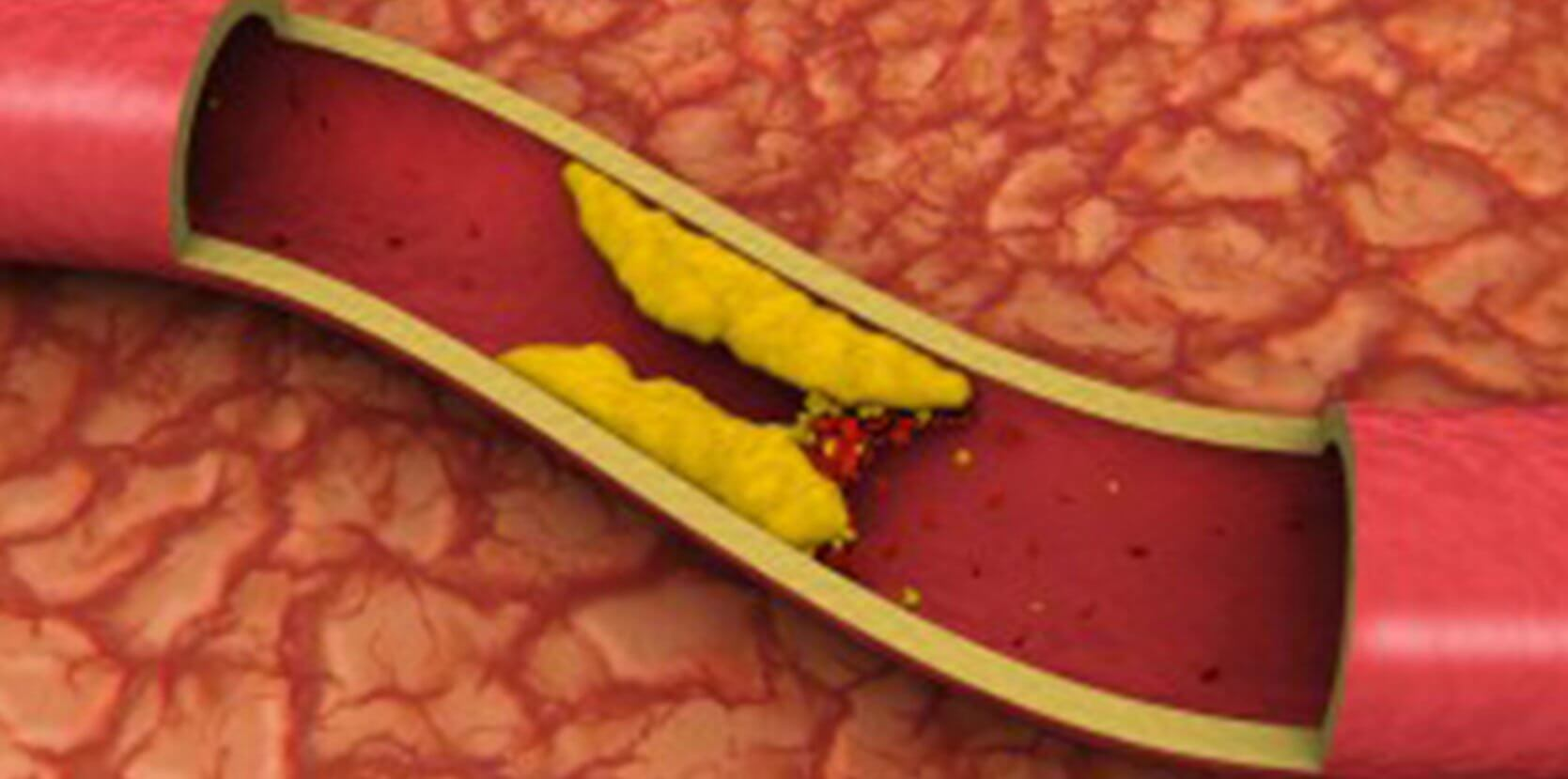 Know about Atherectomy